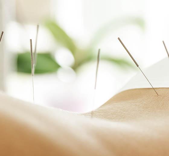 Fertility Acupuncture Effective Acupuncture Treatment